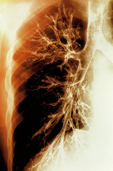 Bronchus Photograph - Lung Airways by Gjlp/science Photo Library