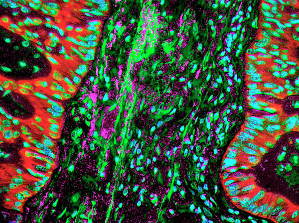 Cancer Wall Art - Photograph - Lung Cancer Desmoplasia by Fox Chase Cancer Center/national Cancer Institute/science Photo Library