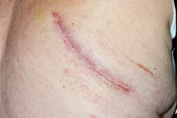 65 Photograph - Lung Cancer Removal Scar by Dr P. Marazzi/science Photo Library