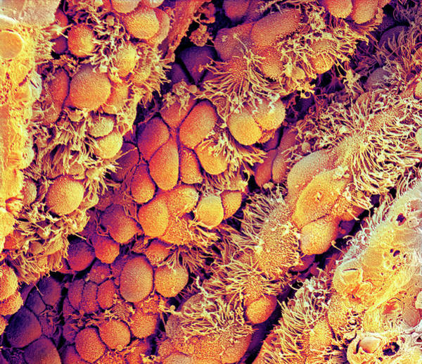 Brain Cell Wall Art - Photograph - Lung Lining by Dr Tony Brain/science Photo Library