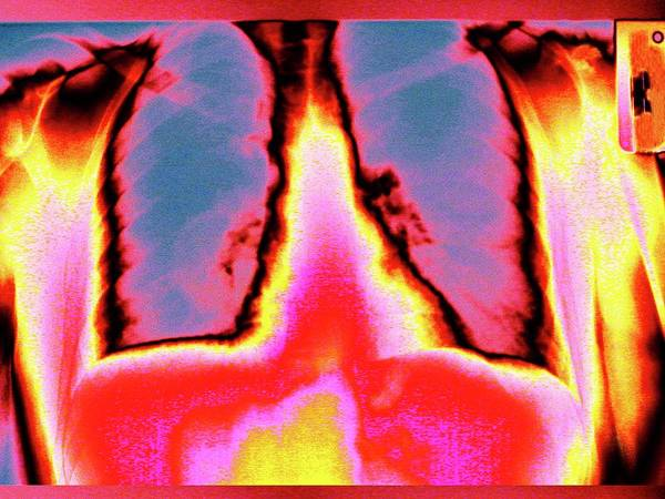 False Ribs Wall Art - Photograph - Lungs And Ribs by Larry Berman