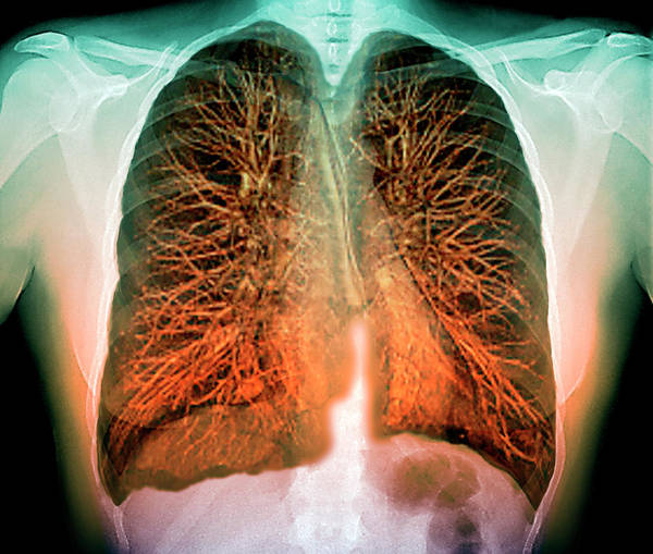 False Ribs Wall Art - Photograph - Lungs by Zephyr/science Photo Library