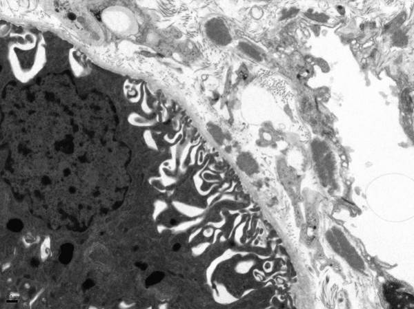 Histology Wall Art - Photograph - Lupus Affected Kidney by R. Bick, B. Poindexter, P. Navarro