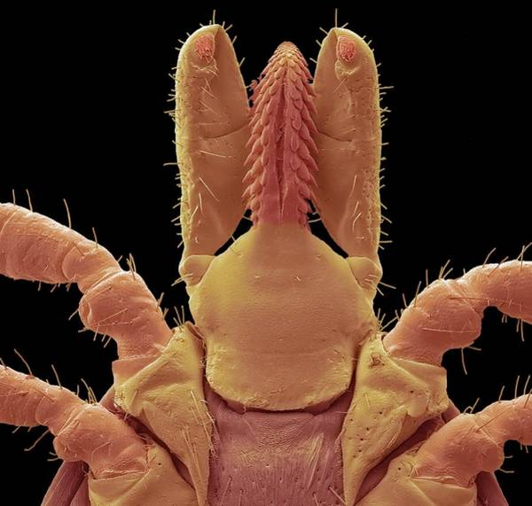 Arachnida Wall Art - Photograph - Lyme Disease Tick Mouth Parts by Steve Gschmeissner/science Photo Library