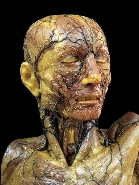 Anatomical Model Photograph - Lymphatic System Model by Javier Trueba/msf
