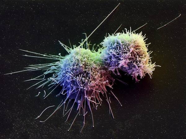 Wall Art - Photograph - Lymphoblast White Blood Cells by David Scharf/science Photo Library