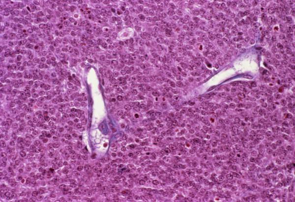 Brain Cancer Wall Art - Photograph - Lymphoma Brain Tumour by Cnri/science Photo Library