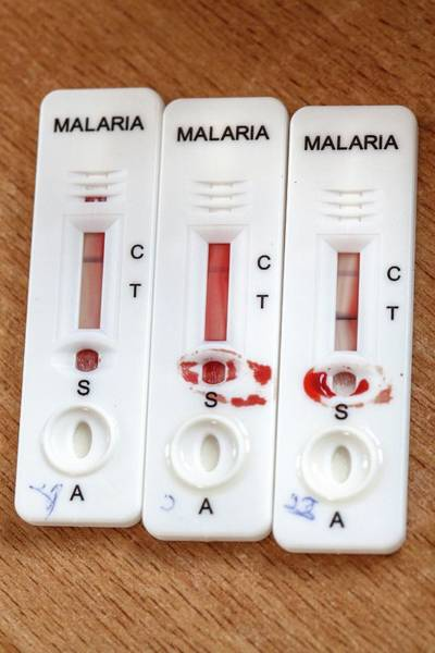Blood Sample Wall Art - Photograph - Malaria Rapid Diagnostic Test Strips by Mauro Fermariello/science Photo Library