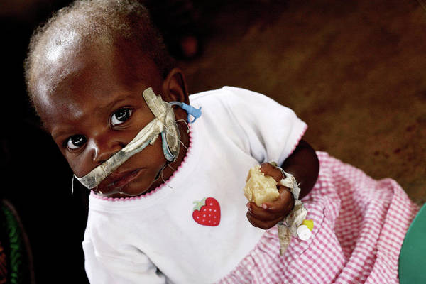 Developing Country Photograph - Malnourished Child Being Fed by Mauro Fermariello/science Photo Library