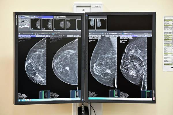 Wall Art - Photograph - Mammograms For Breast Cancer Surgery by Dr P. Marazzi/science Photo Library