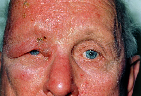 Shingles Photograph - Man Affected By Shingles (herpes Zoster) by Dr P. Marazzi/science Photo Library