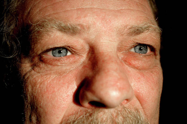 Plastic Surgery Wall Art - Photograph - Man Before Cosmetic Eyelid Surgery by Mauro Fermariello/science Photo Library