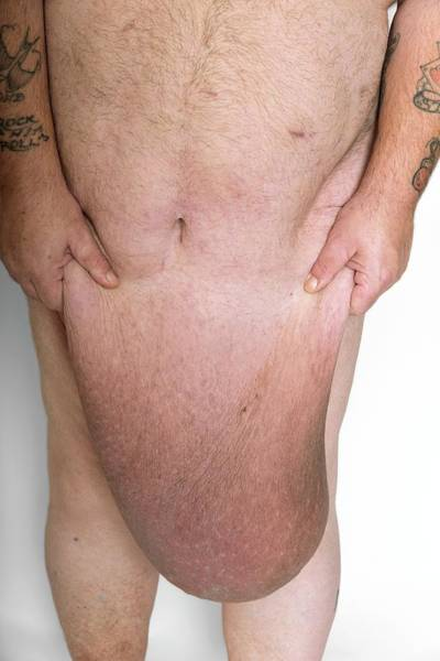 Loose Wall Art - Photograph - Man With Excess Skin After Weight Loss by Science Photo Library