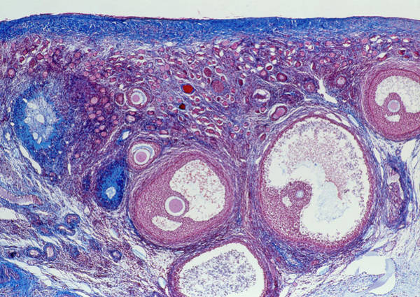 Cortex Photograph - Maturing Follicles by Innerspace Imaging/science Photo Library