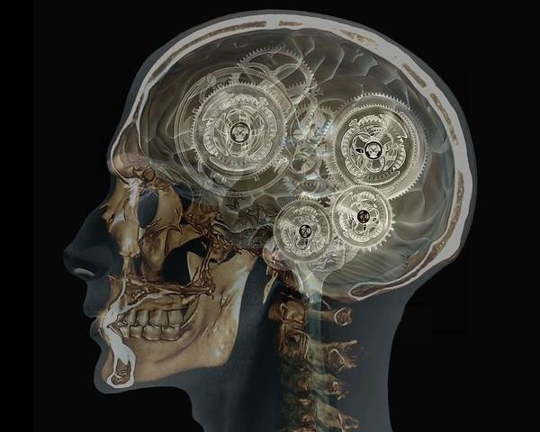 Resonance Wall Art - Photograph - Mechanical Brain by Zephyr/science Photo Library