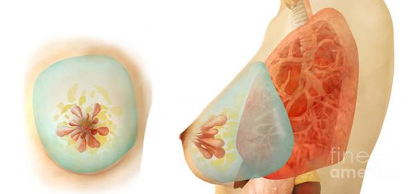 Digital Art - Medical Illustration Of Female Breast by Stocktrek Images