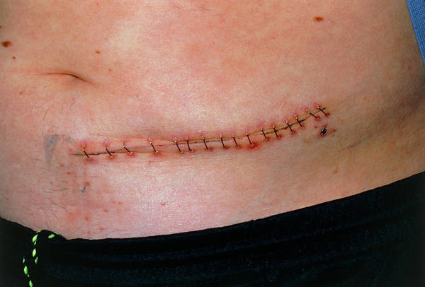 Staples Photograph - Metal Staples Closing A Wound On A Man's Abdomen by Dr H.c.robinson / Science Photo Library