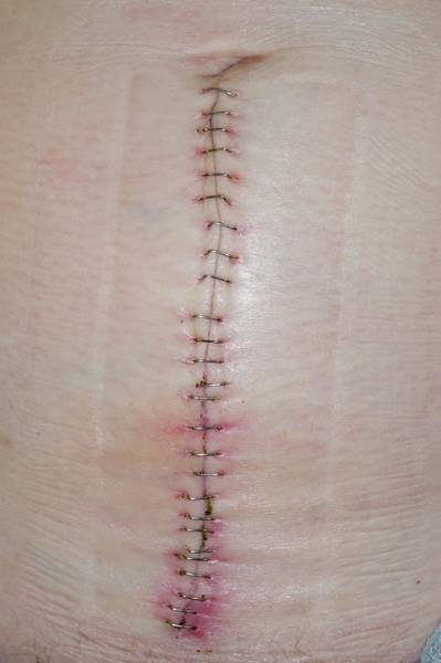Staples Photograph - Metal Staples On An Abdominal Wound by Dr P. Marazzi/science Photo Library