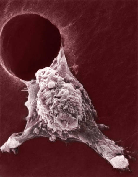 Cancer Wall Art - Photograph - Metastasis Of A Cancerous Cell by Susan Arnold/national Cancer Institute/science Photo Library
