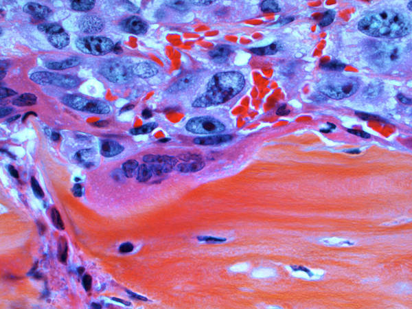 Cancer Wall Art - Photograph - Metastatic Bone Cancer by Indiana University Simon Cancer Center/national Cancer Institute/science Photo Library
