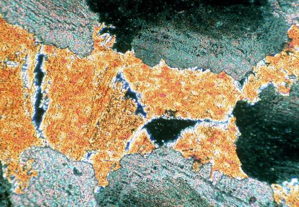 Geomorphology Wall Art - Photograph - Micrograph Of Equant Dolomite Crystals/limestone by Jon Wilson/science Photo Library