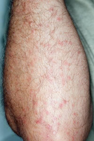 Midge Photograph - Midge Bites On A Fisherman's Arm by Dr P. Marazzi/science Photo Library