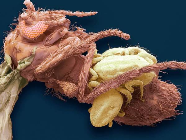 Midge Photograph - Mites On A Midge by Steve Gschmeissner/science Photo Library