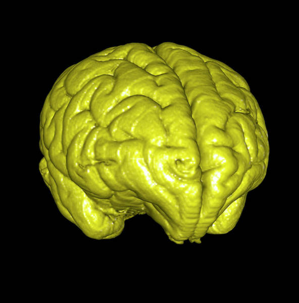 Neurology Photograph - Monkey Brain by Thierry Berrod, Mona Lisa Production/ Science Photo Library
