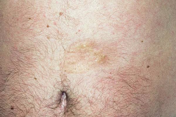 Wall Art - Photograph - Morphea On The Abdomen by Dr P. Marazzi/science Photo Library