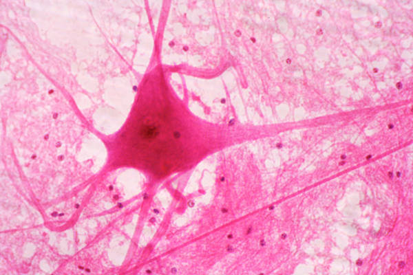Spinal Cord Photograph - Motor Neuron In An Ox Spinal Cord. Lm by Science Stock Photography