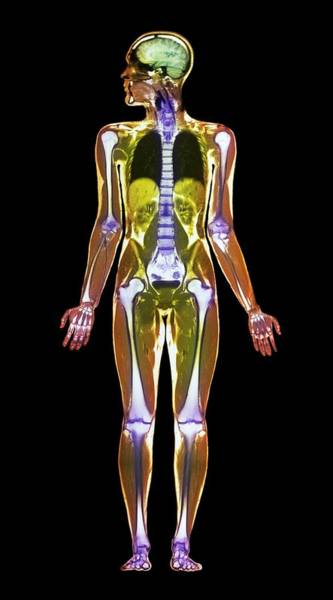 Mri Photograph - Mri Body Scan by Simon Fraser/science Photo Library