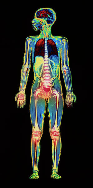 Mri Photograph - Mri Child Body Scan by Simon Fraser/science Photo Library