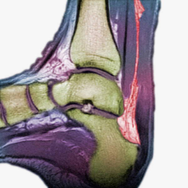 Mri Photograph - Mri Of A Rupture Of The Achilles Tendon by Science Stock Photography/science Photo Library
