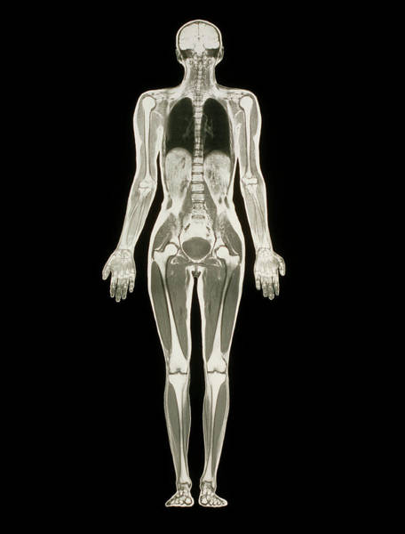 Mri Photograph - Mri Scan Of A Whole Human Body (female) by Simon Fraser/science Photo Library