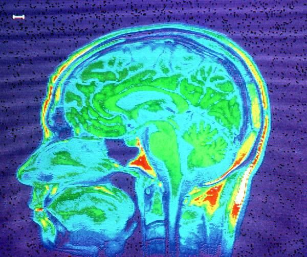 Mri Scan Wall Art - Photograph - Mri Scan Of Brain by Cnri/science Photo Library