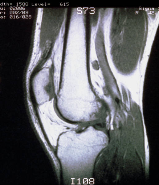Mri Scan Wall Art - Photograph - Mri Scan Of Sagittal Section Through Knee Joint by Science Photo Library
