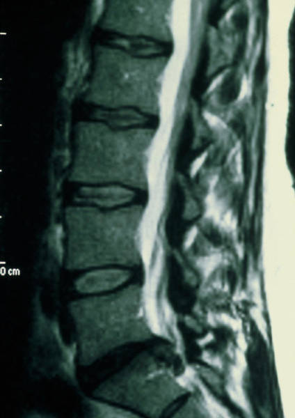Mri Photograph - Mri Scan Of The Back Showing Prolapsed Disc. by Dr P. Marazzi/science Photo Library