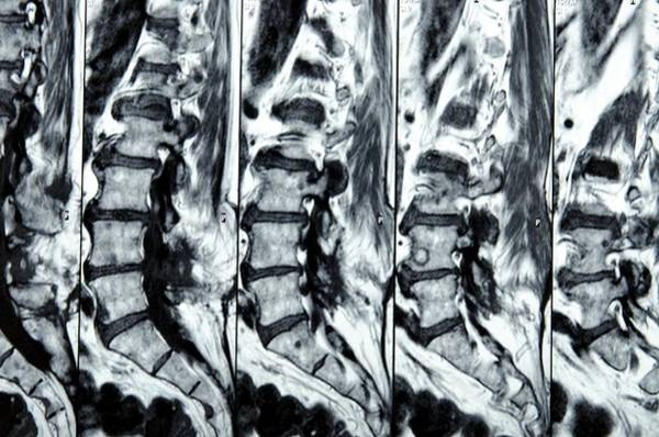 Diagnosis Wall Art - Photograph - Mri Scans Of The Spine by Dr P. Marazzi/science Photo Library