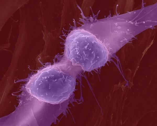 Skeletal Muscle Photograph - Muscle Myoblast Dividing by Dennis Kunkel Microscopy/science Photo Library