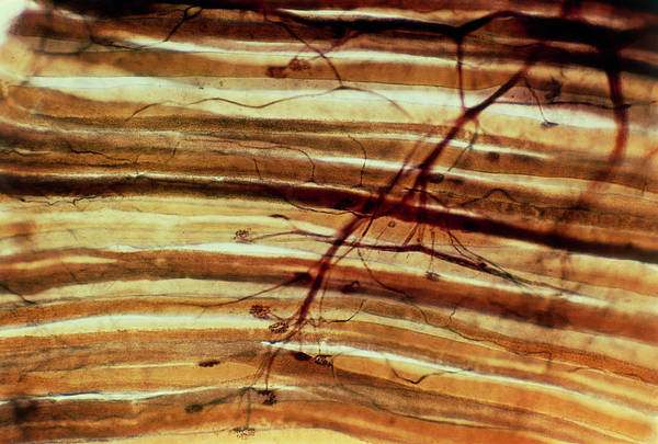 Histology Photograph - Muscle Nerve Endings by Astrid & Hanns-frieder Michler/science Photo Library