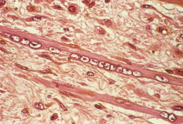 Wall Art - Photograph - Muscle Wasting In Cancer by Pr. R. Abelanet - Cnri/science Photo Library