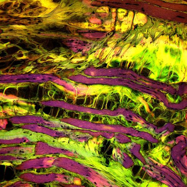 Adipose Tissue Photograph - Muscular Dystrophy by Patrick Landmann/science Photo Library