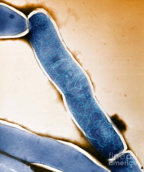 Photograph - Mycobacterium Leprae Tem by Kwangshin Kim