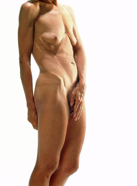 Anorexia Photograph - Naked Body Of A Woman Suffering Anorexia Nervosa by Cc Studio/science Photo Library