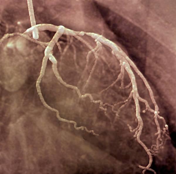 Narrowed Heart Artery Art Print
