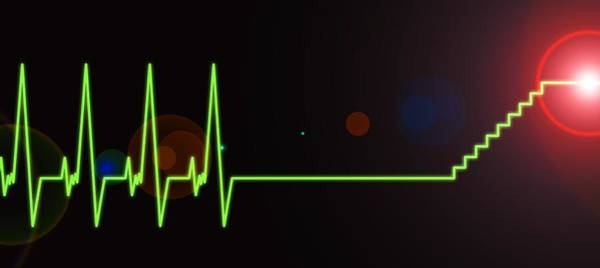 Wall Art - Photograph - Near-death Experience, Heartbeat Trace by Science Photo Library