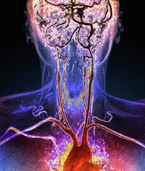 Vertebral Artery Photograph - Neck And Brain Aneurysms by Zephyr/science Photo Library