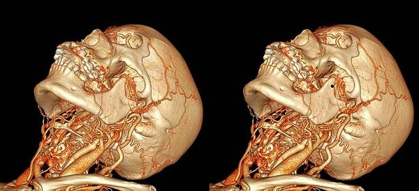 Stereogram Photograph - Neck And Brain Blood Vessels by K H Fung/science Photo Library