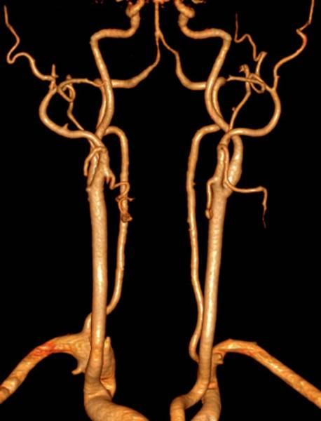 Vertebral Artery Photograph - Neck Arteries by Zephyr/science Photo Library