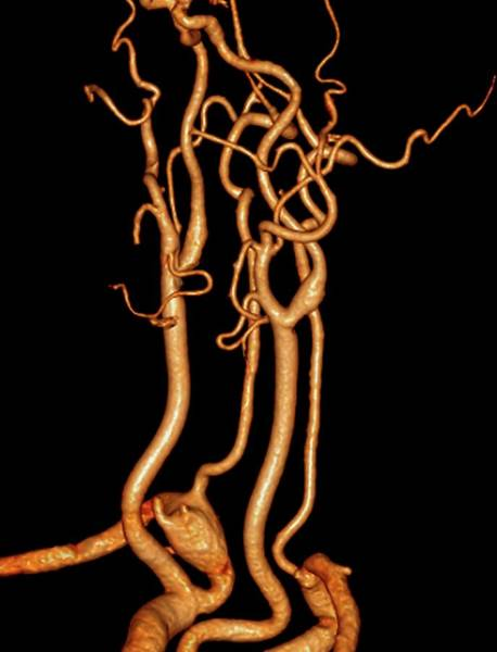 Vertebral Artery Photograph - Neck Blood Vessels In Stroke Patient by Zephyr/science Photo Library